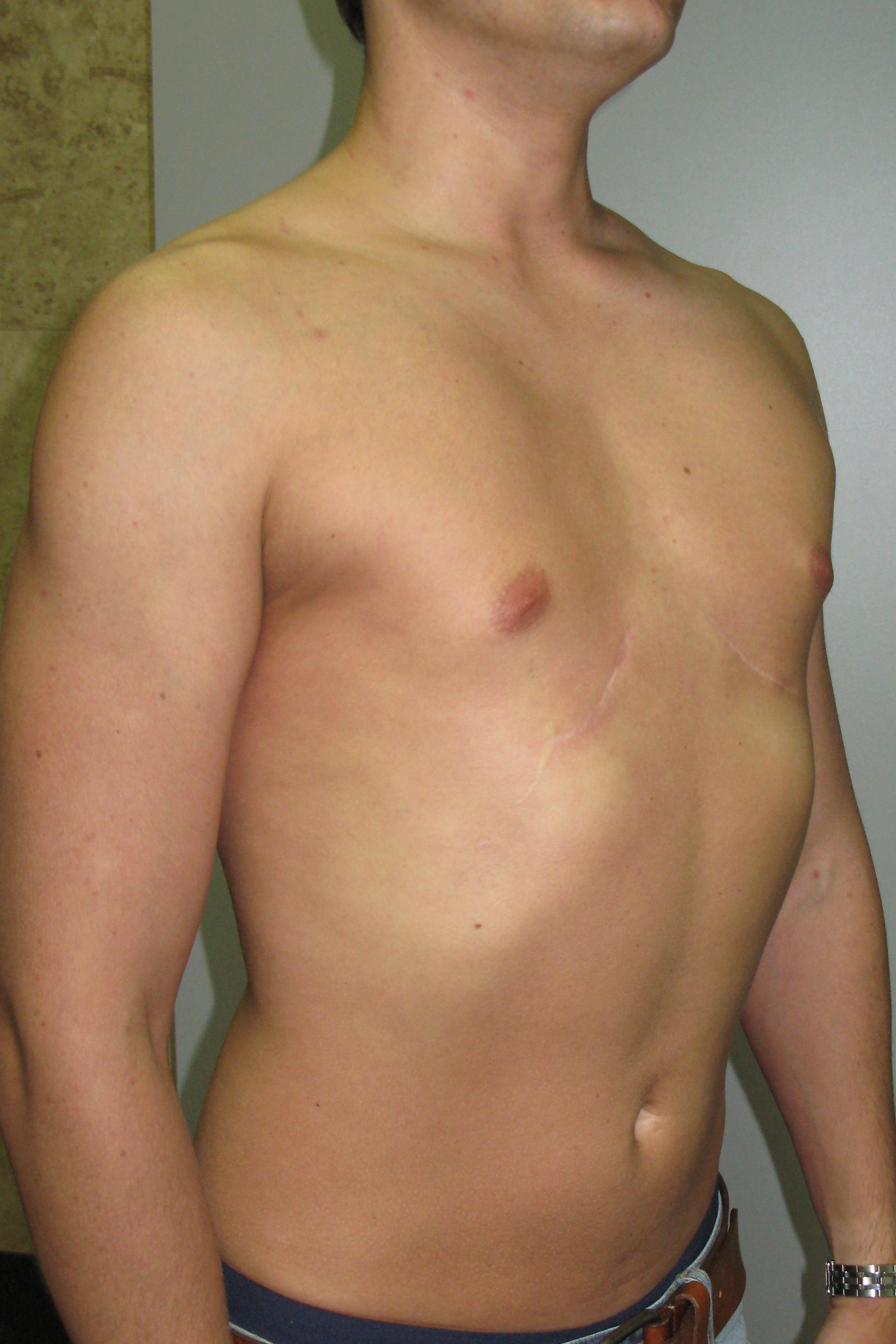 Хочу силиконовые груди
